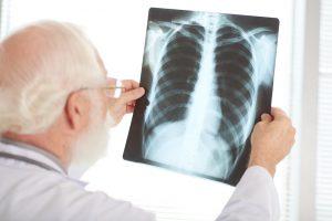 Waspada Beberapa Faktor Risiko Kanker Paru-Paru Berikut